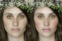 Hướng dẫn cách xóa mụn và làm mịn da bằng photoshop